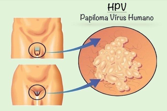 causas del virus del papiloma humano
