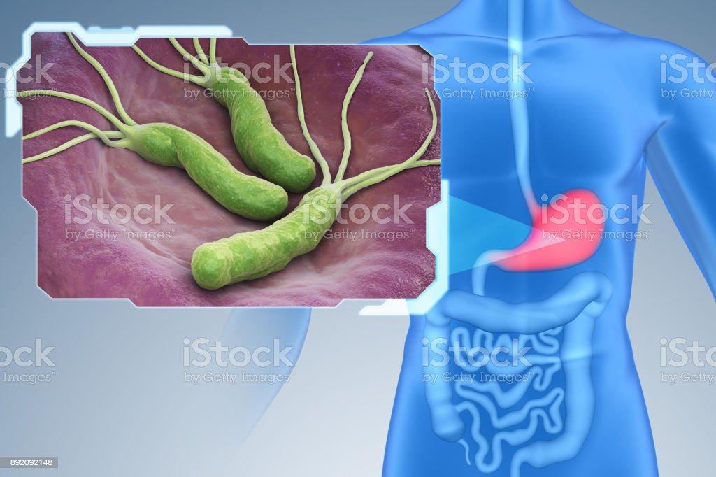 human papillomavirus statistics tratament paraziti intestinali la adulti