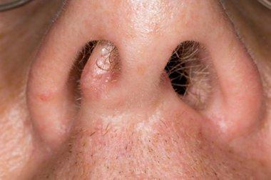 virus papiloma humano verrugas en las manos detoxifiere emag