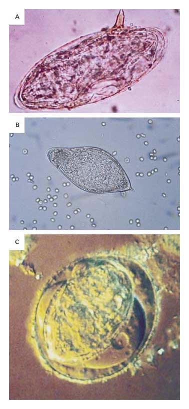 schistosomiasis united states hpv high risk atypical squamous cells