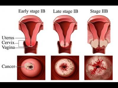 Cauzele cancerului de col uterin si cum evitam aparitia acestuia
