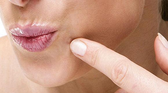 hpv skin rash treatment schistosomiasis klachten