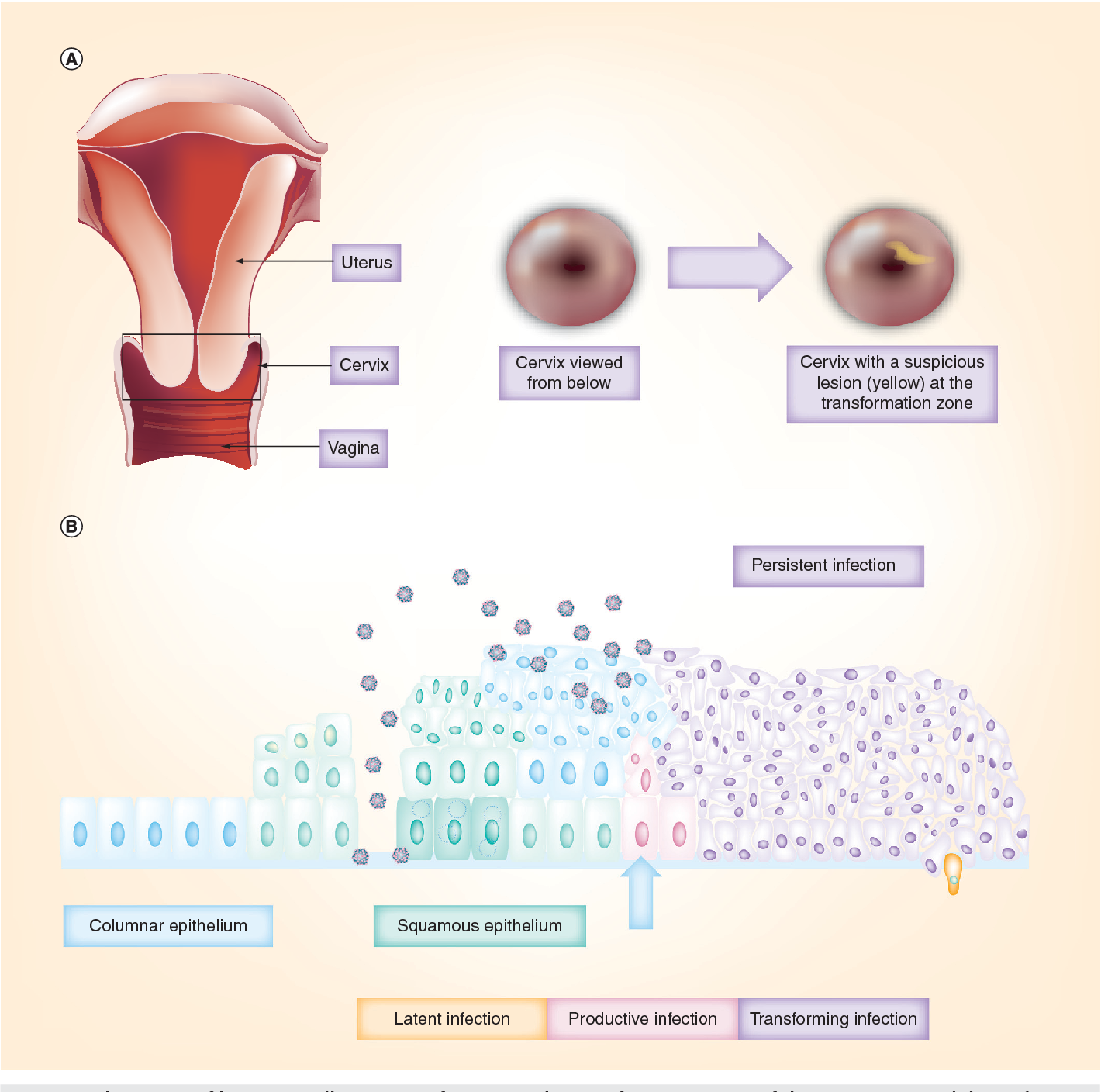 Infectie genitala Human Papilloma Virus (HPV)