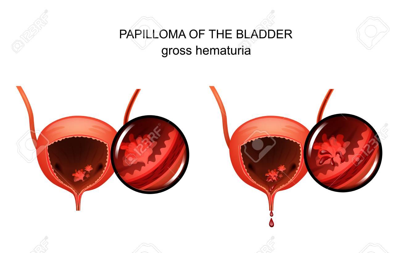 Prostatita acută și hematuria
