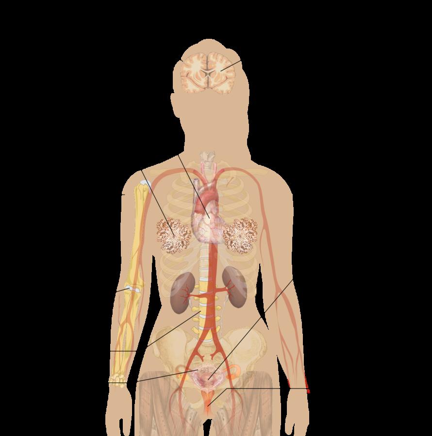 ovarian cancer knee pain cancerul cu metastaze