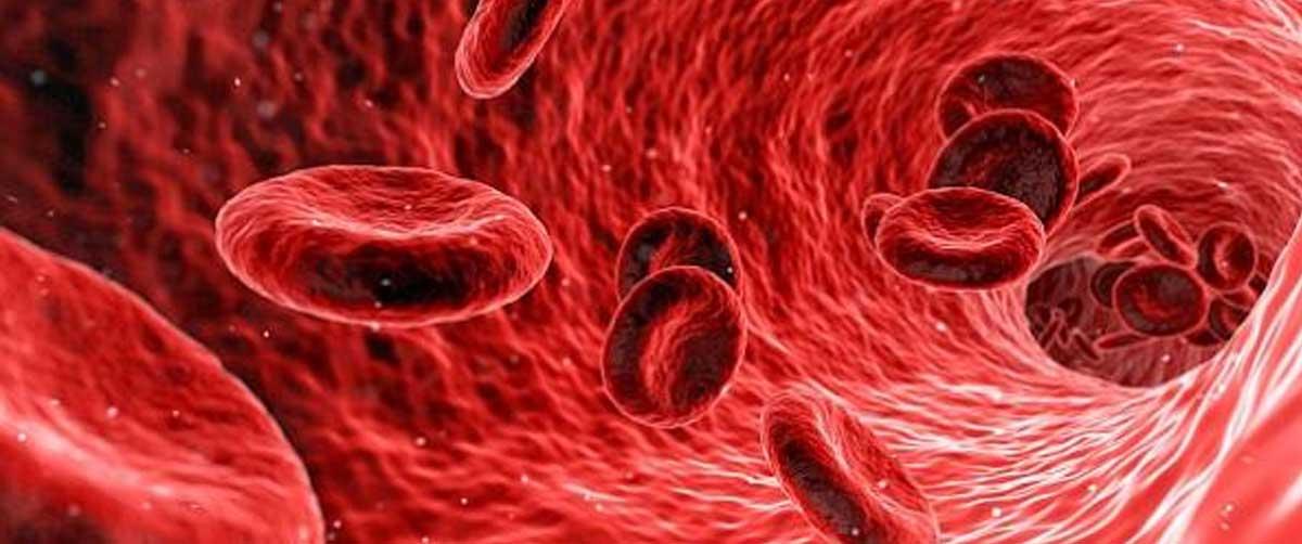Leucemia: simptome, factori de risc si tratament
