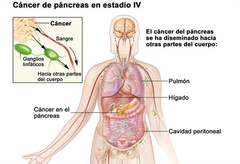 cancer de pancreas organos que afecta