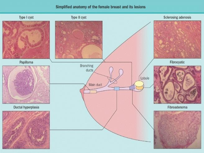 kako prepoznati parazite u tijelu simptome cancer unghie