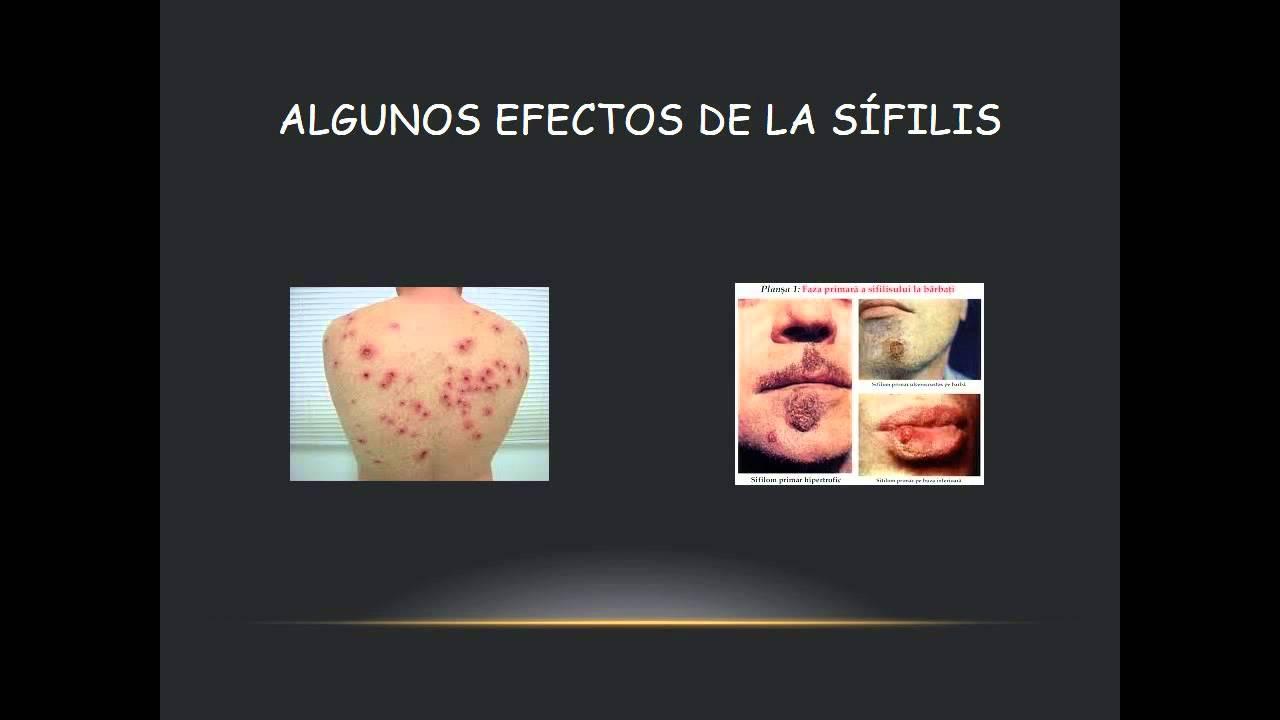 virus papiloma humano sintomas cura papiloma contagio