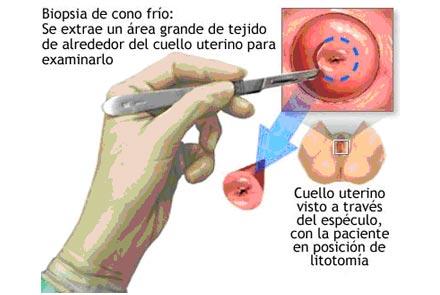 tratamiento del virus del papiloma humano human papillomavirus cause plantar wart