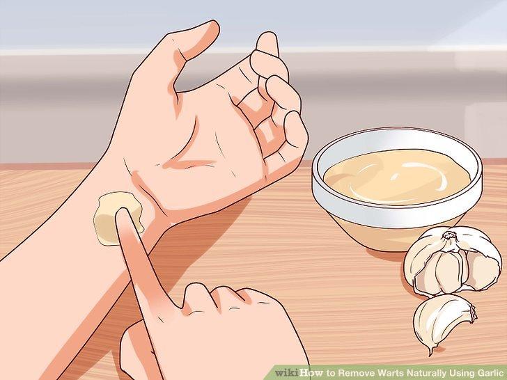 Eliminarea negilor cu acest usturoi și tratamentul cu lamaie - ghise-ioan.ro