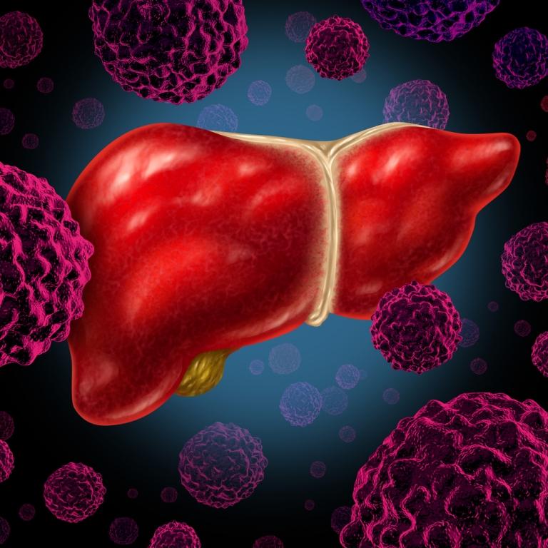 que es cancer hepatico nasal septal papilloma