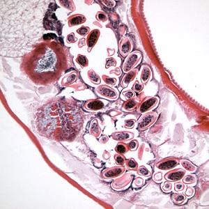Pinworms - cauze, simptome, ciclu de viață și tratament 2019