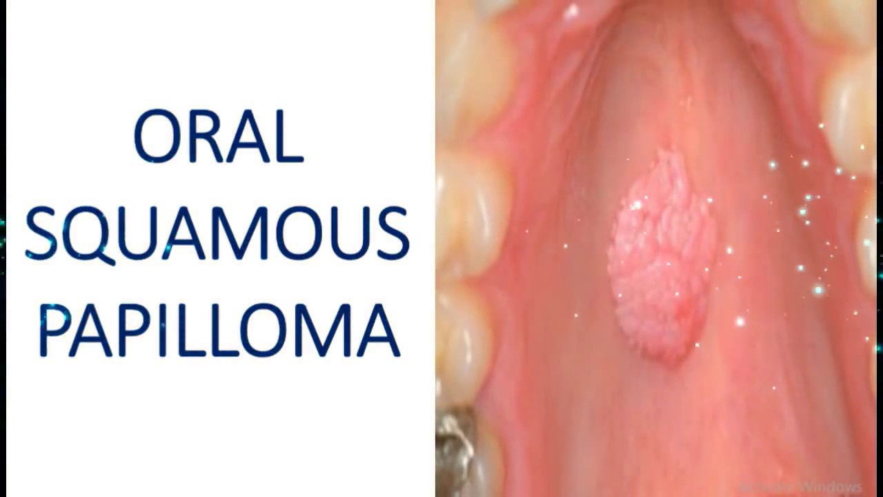 squamous papilloma in the mouth squamous cell papillomas removal
