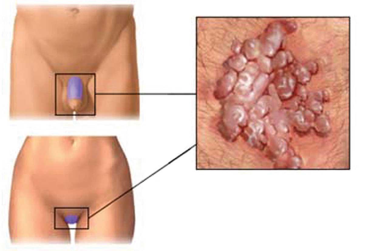 immagini del papilloma virus uomo