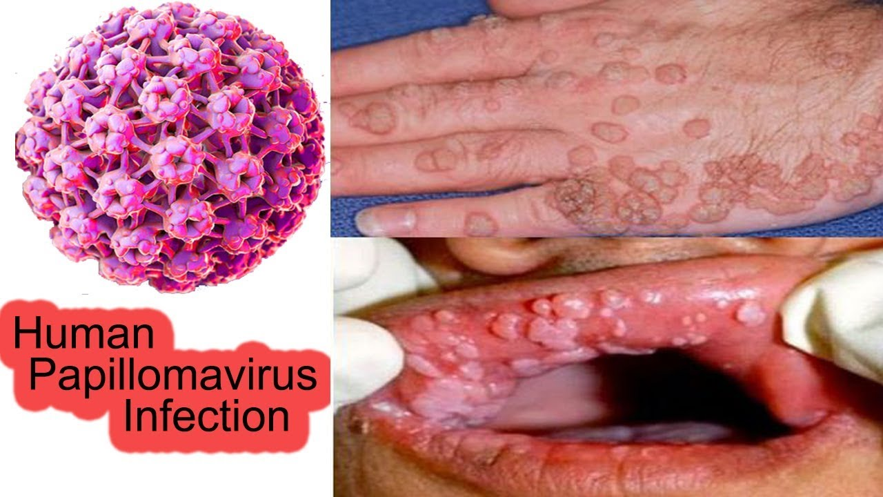 hpv warts beginning stages