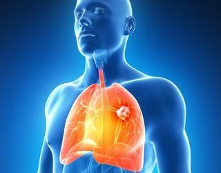 Cancerul la plămâni - simptome și tratament