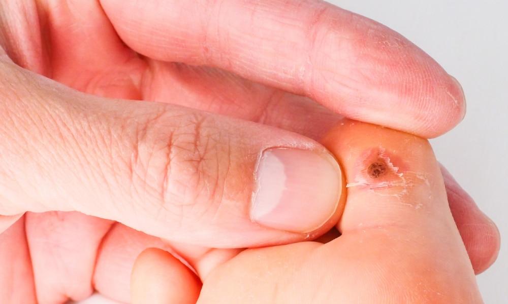 wart on hands removal human papillomavirus on tongue