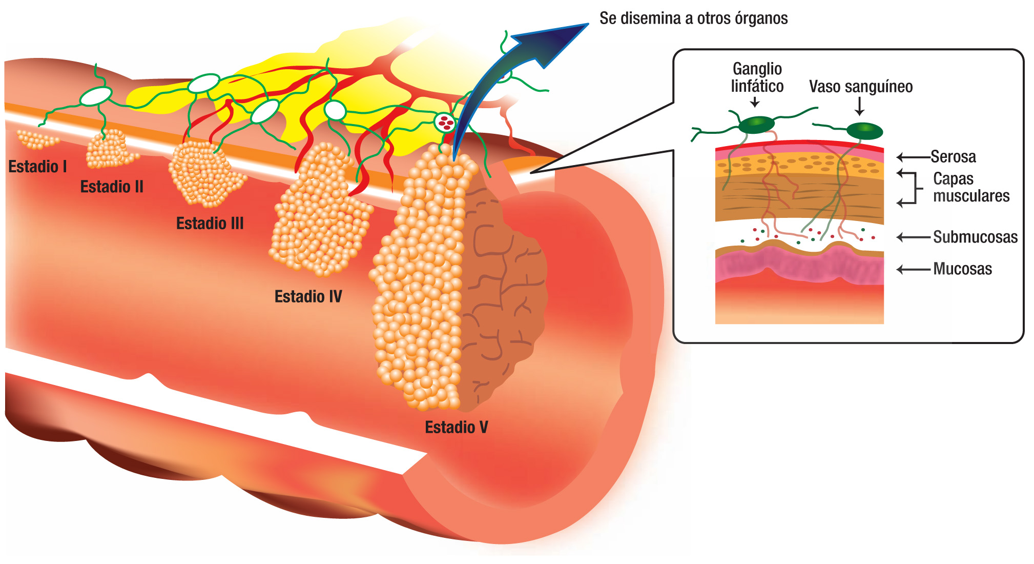 cancer colorectal fin de vie anemie u batolat