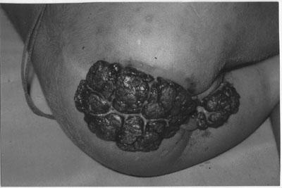 Terapii clasice și moderne ale verucilor cutanate și anogenitale