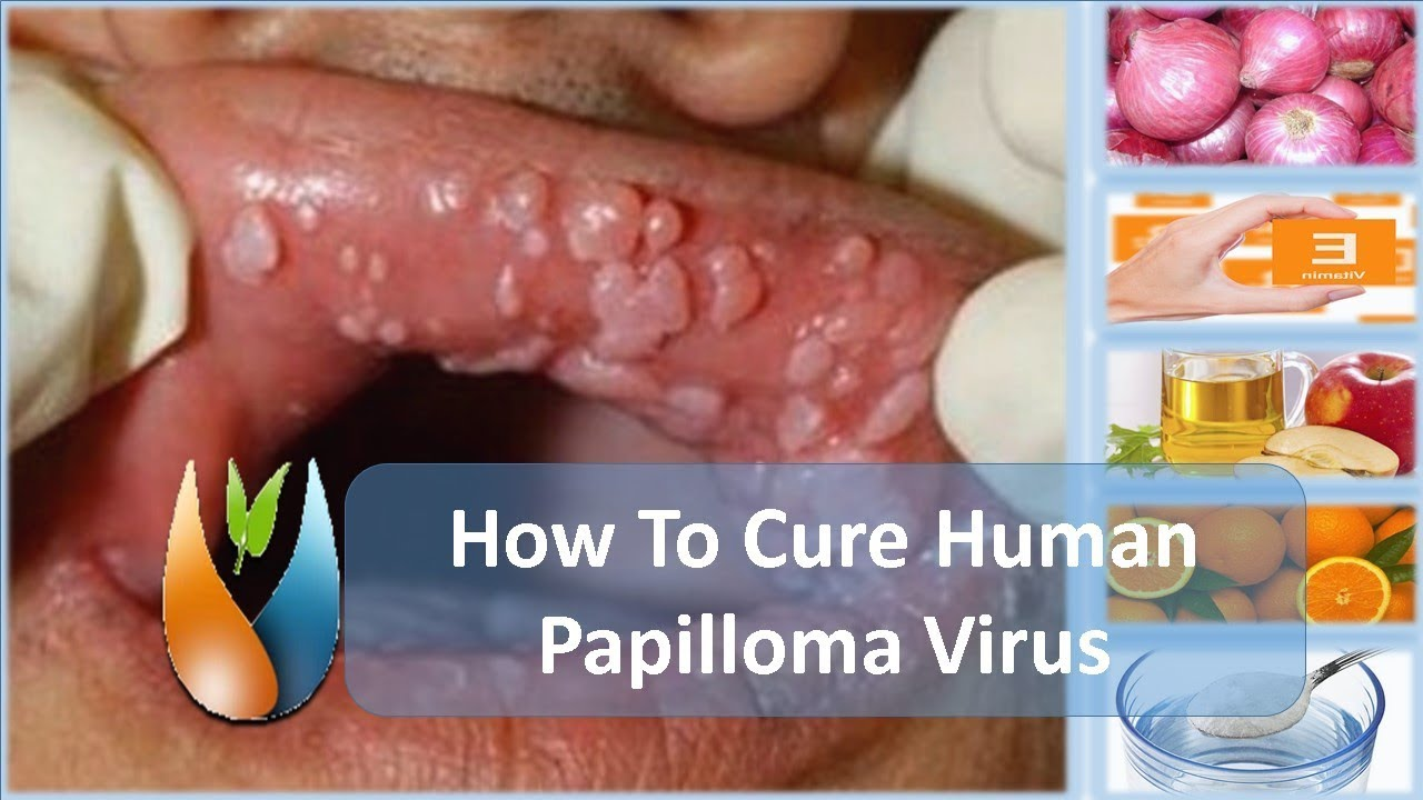 cure for papiloma