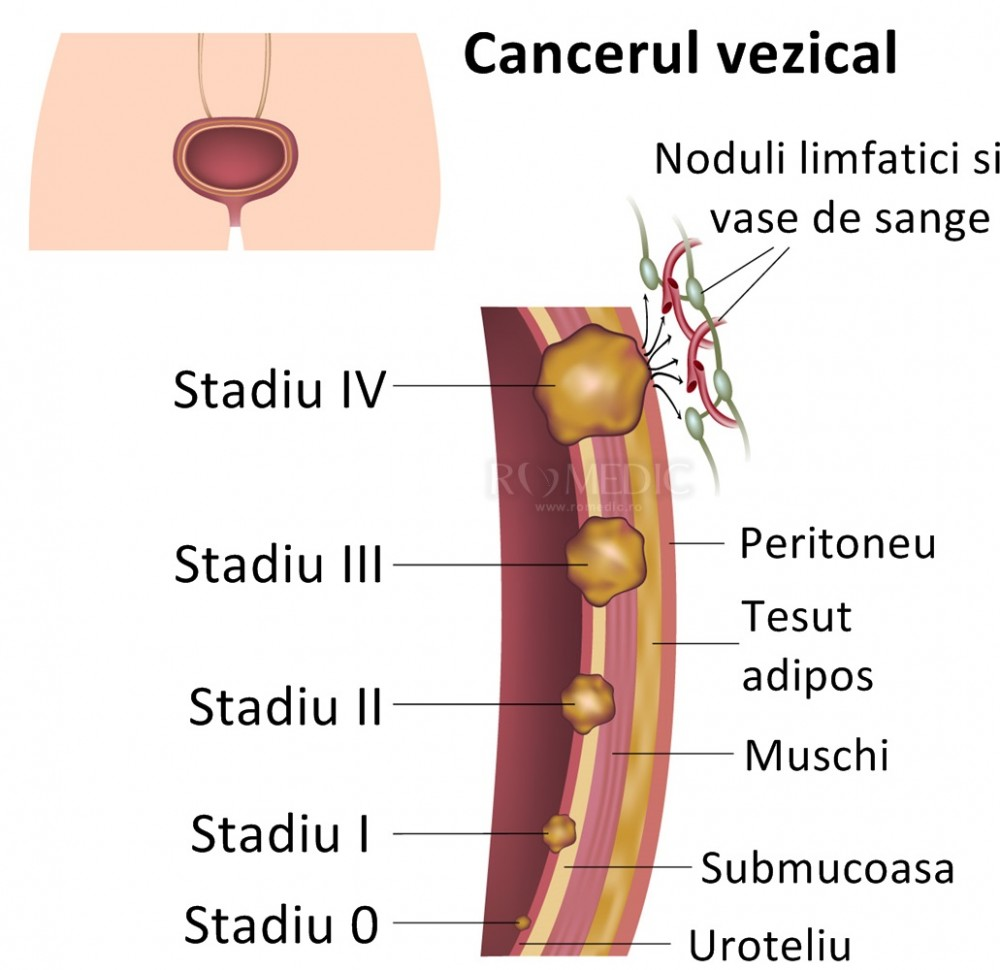 cancer vezica urinara femei hpv este herpes