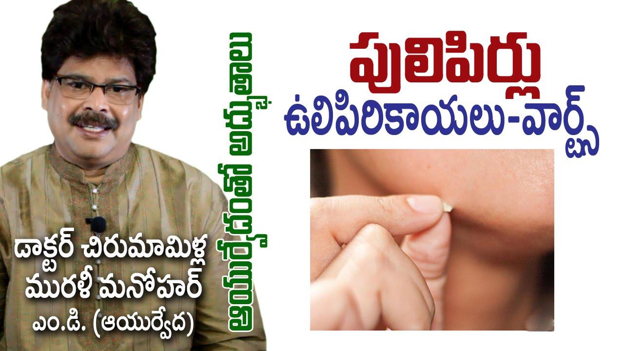 Common Warts Treatment Mallikarjun Rao MP3 Download