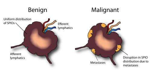metastatic cancer lymph nodes