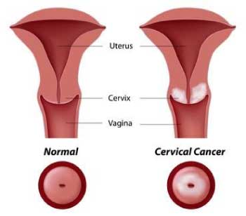 hpv cervice sintomi