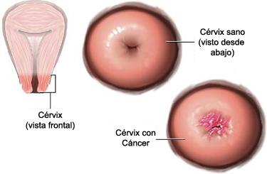 virus papiloma humano sin tratamiento