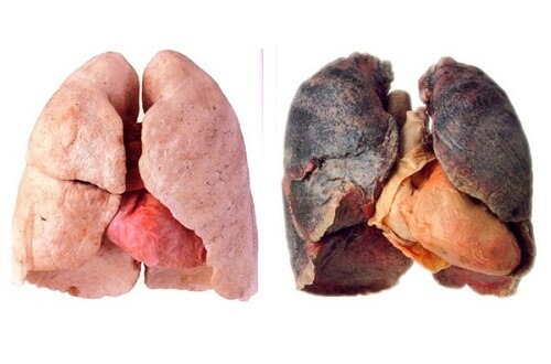 papiloma ductal en mama cancer de pancreas metastasico