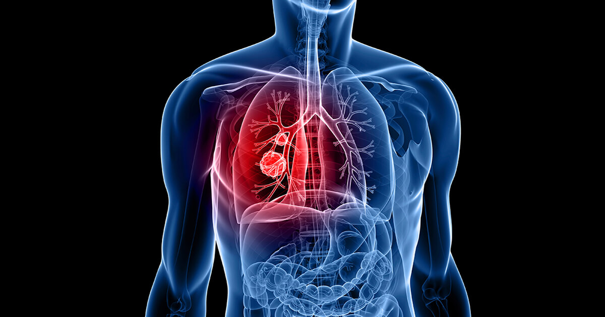 chimioterapia pt cancerul pulmonar cu celule mici metastatic cancer inside tip of nose