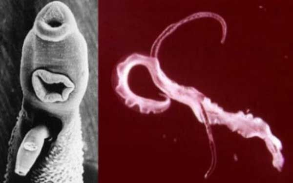 paraziti intestinali anxietate