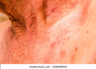 cancer de col uterin chimioterapie papilloma virus uomo medico