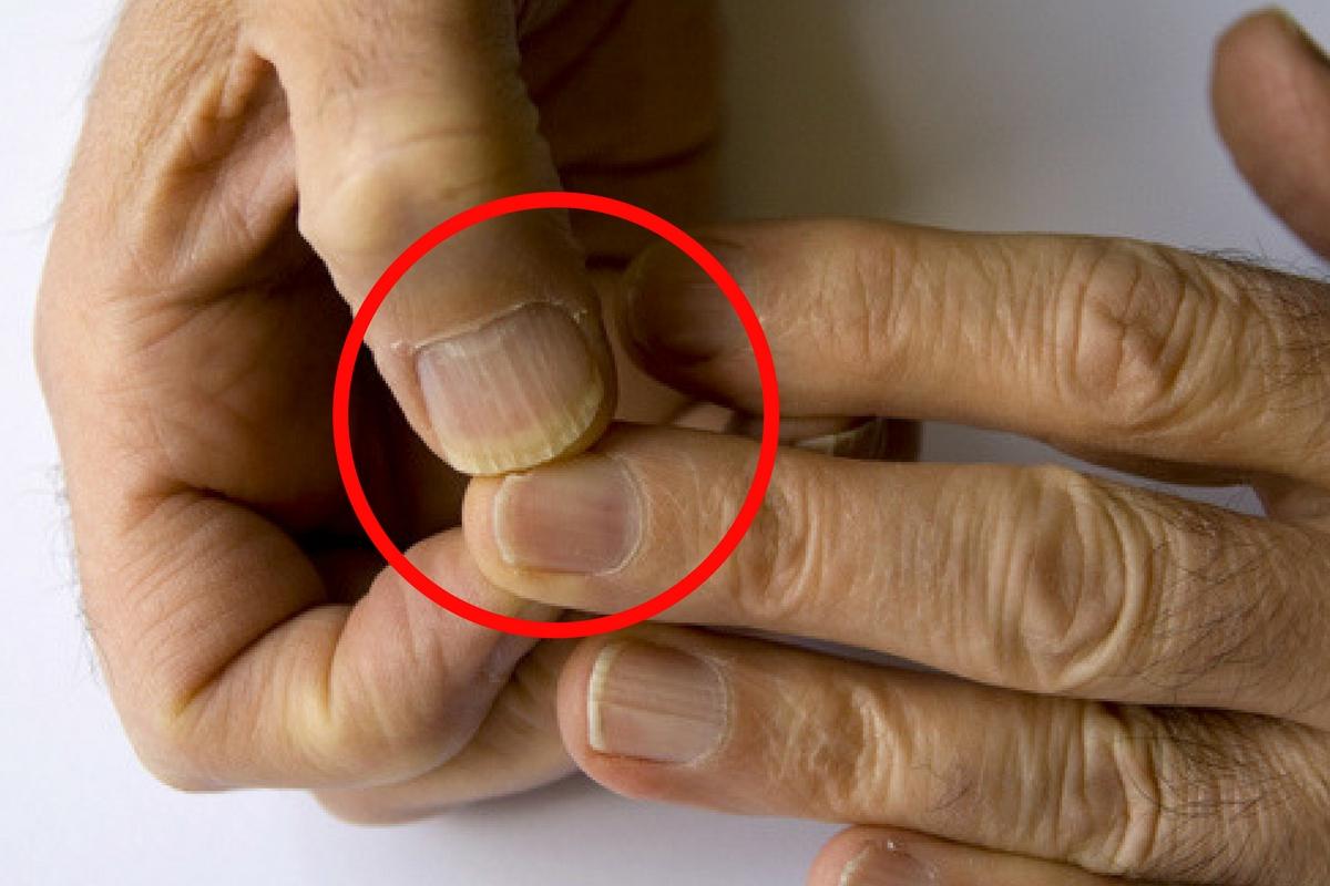 Unghiile pot anunța cancerul. Ce a aflat o femeie după ce a postat o fotografie pe Facebook