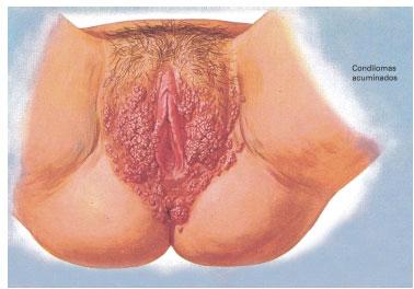papilloma of malignancy