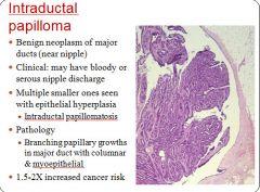 cancerul in metastaza clinici detoxifiere romania