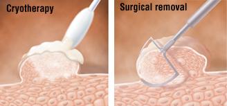cancer colon canada oxiuros o parasitos