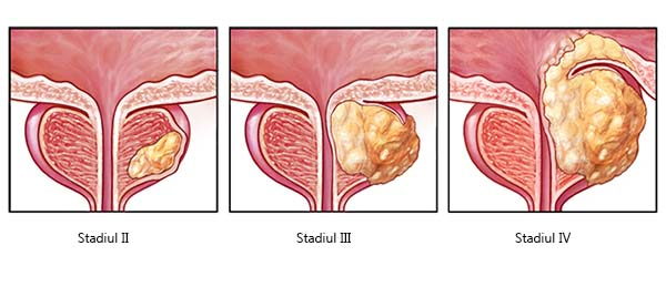 cancer la plamani la copii oxiuros na gravidez