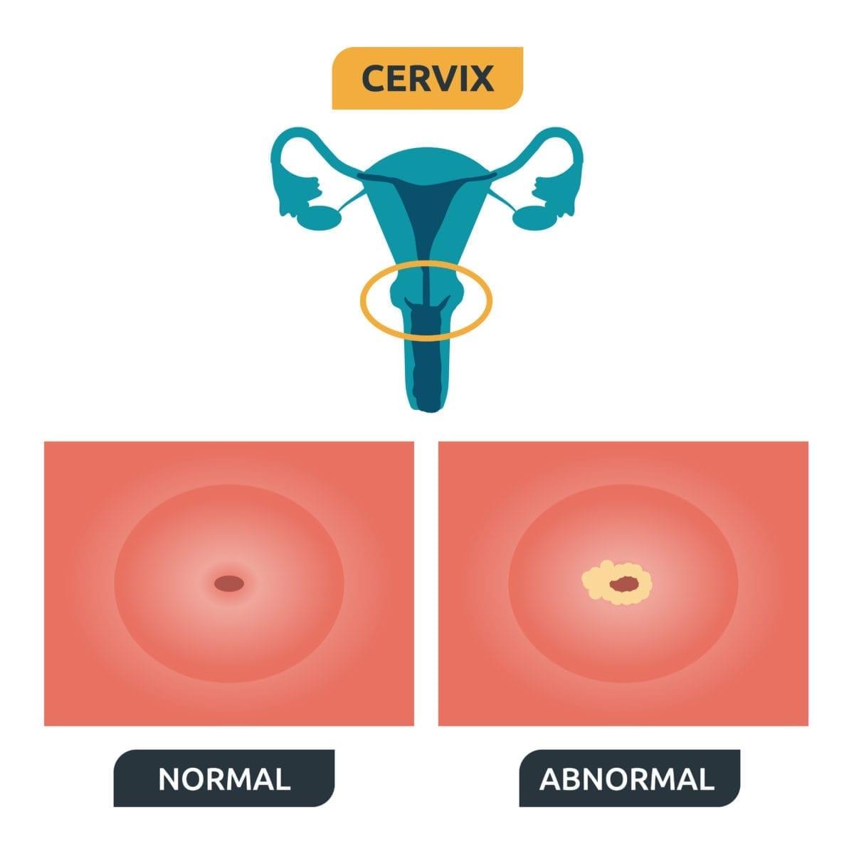 precancerous cells on cervix hpv operazione papilloma virus uomo