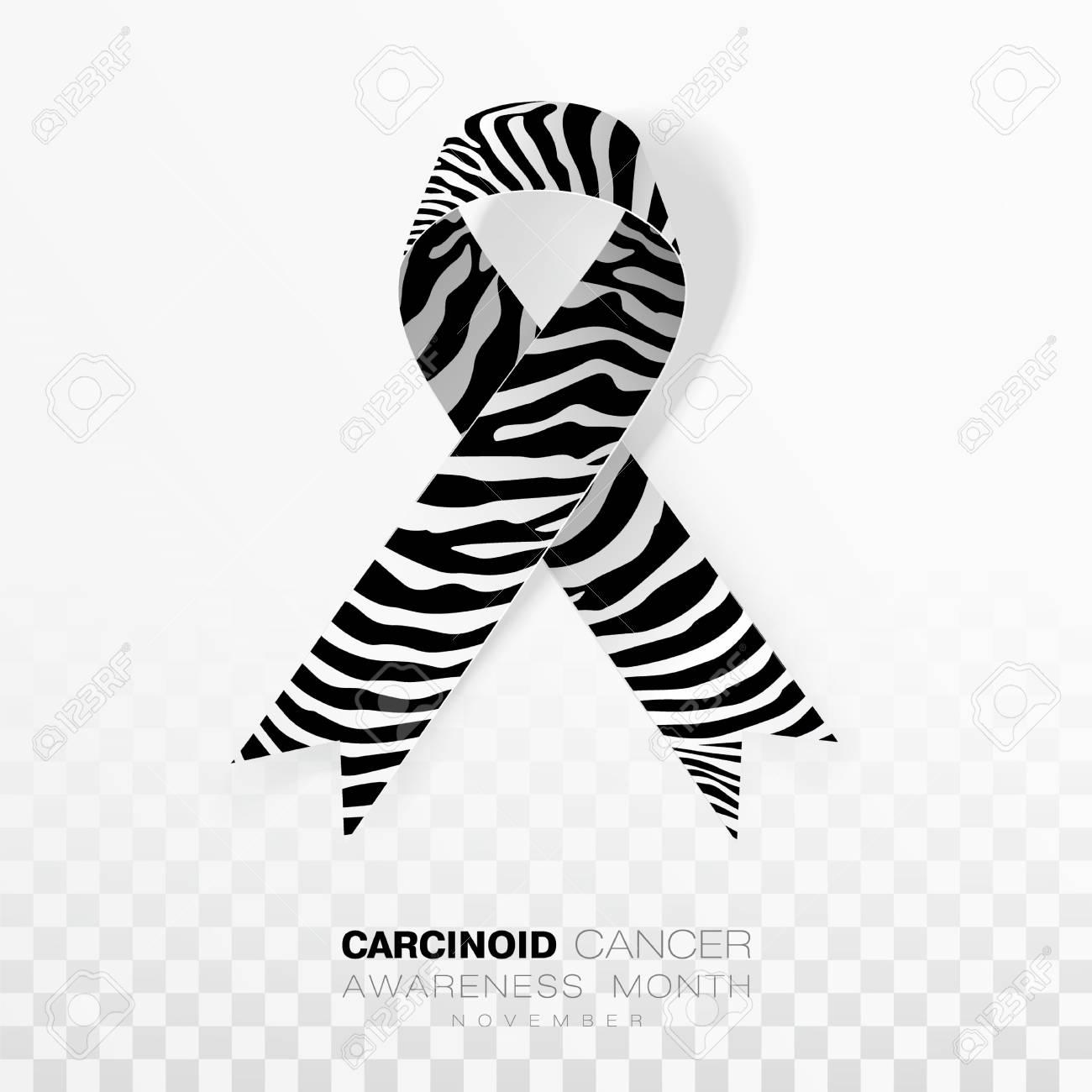 neuroendocrine cancer ribbon color fisiopatologia cancer laringe