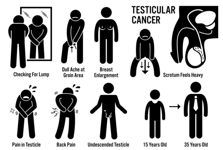testicular cancer warning signs
