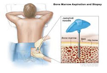 Tumorile măduvei spinării: simptome, cauze, diagnostic, tratament