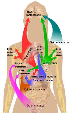 metastatic cancer means