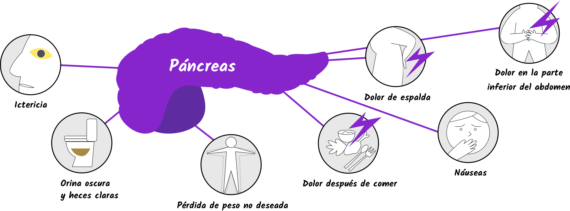 cancer pancreas dolor