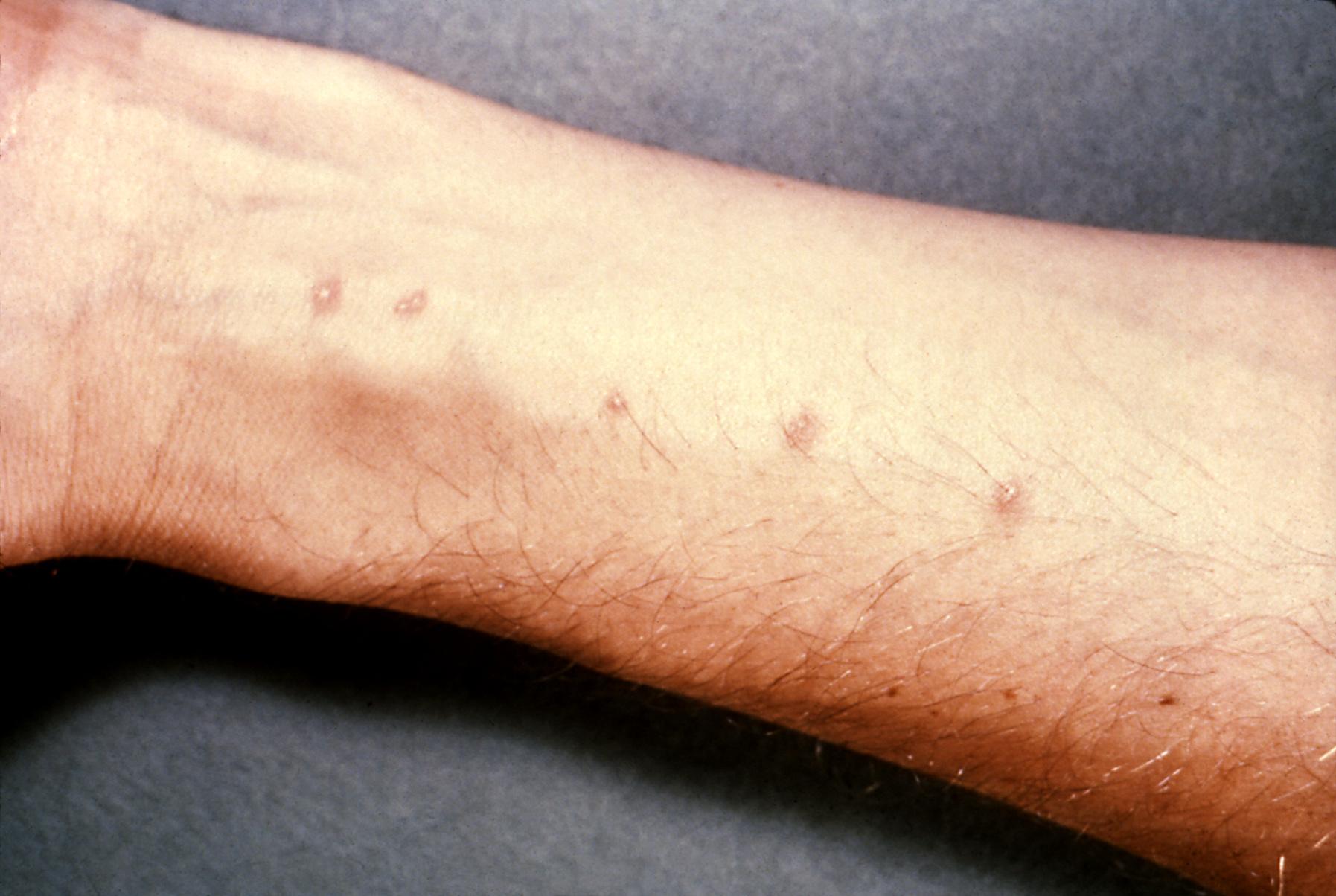 schistosomiasis o esquistosomiasis
