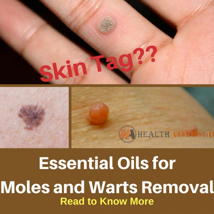 warts on hands essential oils hpv cancer blog