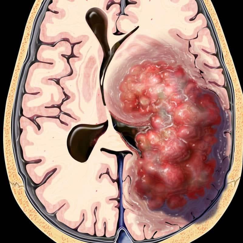 cancer cerebral grau 4