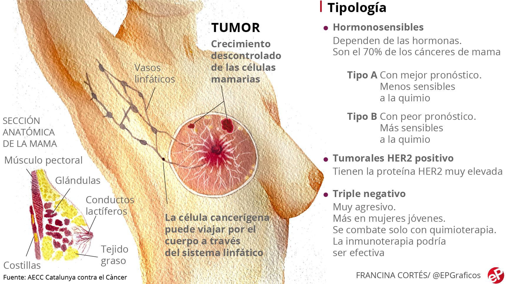 cancer hormonal de pecho endometrial cancer globocan