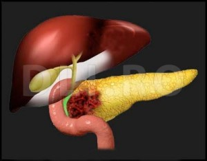 cauze cancer pancreatic